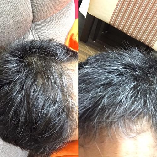 本日の白髪染め